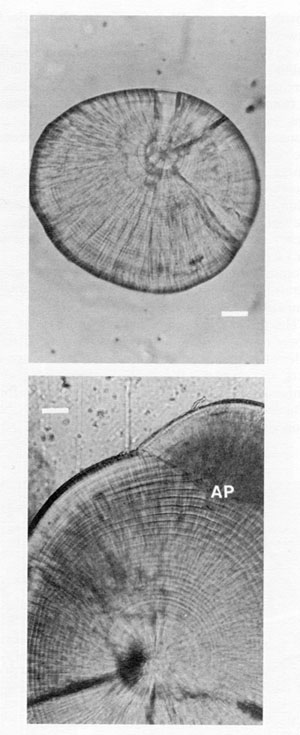 FIG. 7. A comparison of the microstructure of lapilli and sagittae from the same, 20 mm cod. Both otoliths have been polished, and reproduced at the same scale. Bar = 20 µm. The growth sequence in the lapillus (top) has well-defined and spatially-uniform increments, although the latter would become increasingly narrow and difficult to interpret in older juveniles. In contrast, the daily increments in the sagitta (bottom) are narrower than those of the lapillus for the first 5-15 d after hatch (not visible at this magnification), but become increasingly broad with age. Increments towards the edge of the sagitta are more than 3 times as broad as those at equivalent ages in the lapillus; the sagitta also shows evidence of splitting and/or subdaily increments in the outermost 15 d. Daily increments are broader yet, but indistinct, around the newly formed accessory primordium (AP) at upper right.
